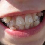 Установка дуги (зубы до и после)