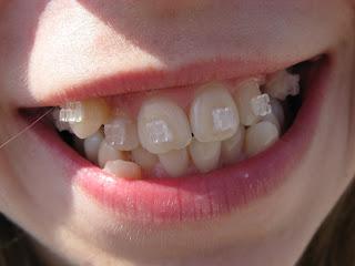 зубы до установки дуги