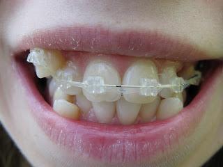 зубы после установки дуги