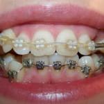 После 3 месяцев ношения брекетов (фото зубов до и после)