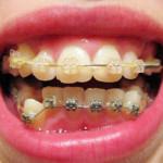 После 4 месяцев ношения брекетов (фото зубов до и после)