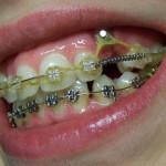И снова про зуб в глубине десны
