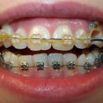 После 7-8 месяцев ношения брекетов (фото зубов до и после)
