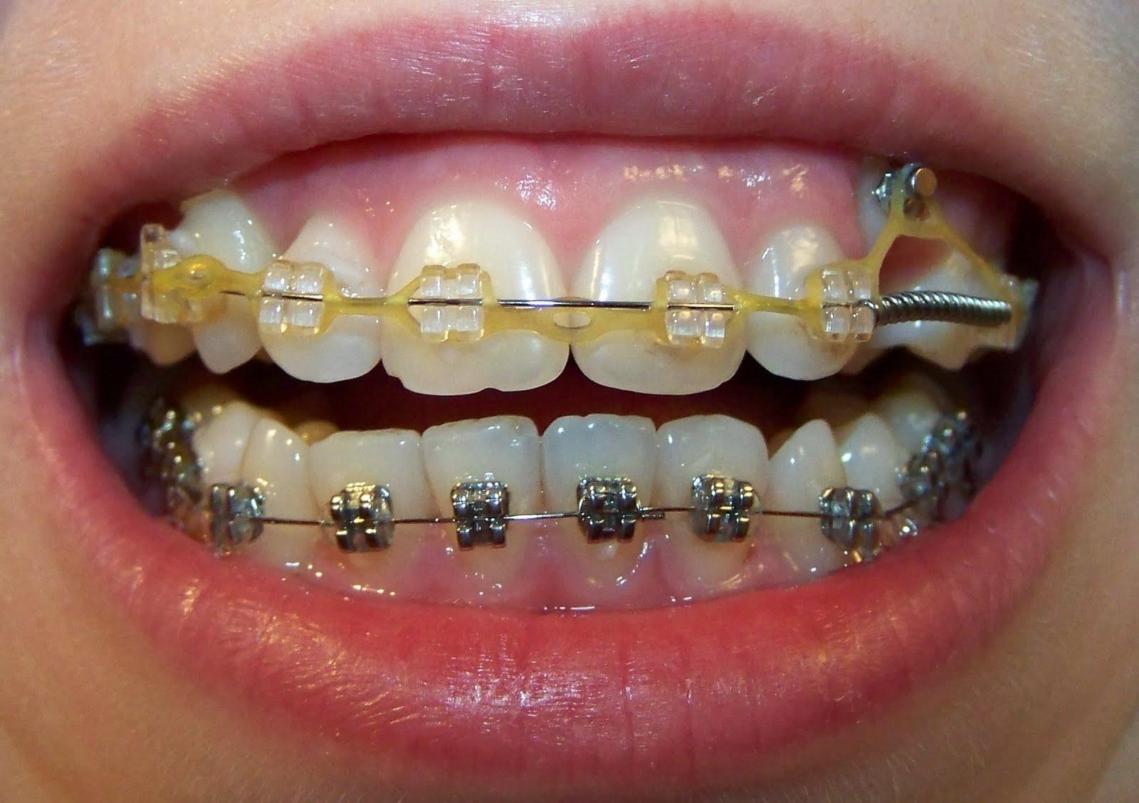 Как скрыть что нет зубов