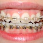 Зубы спустя 1 год и 3 месяца