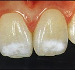 После снятия брекетов зубы уехали