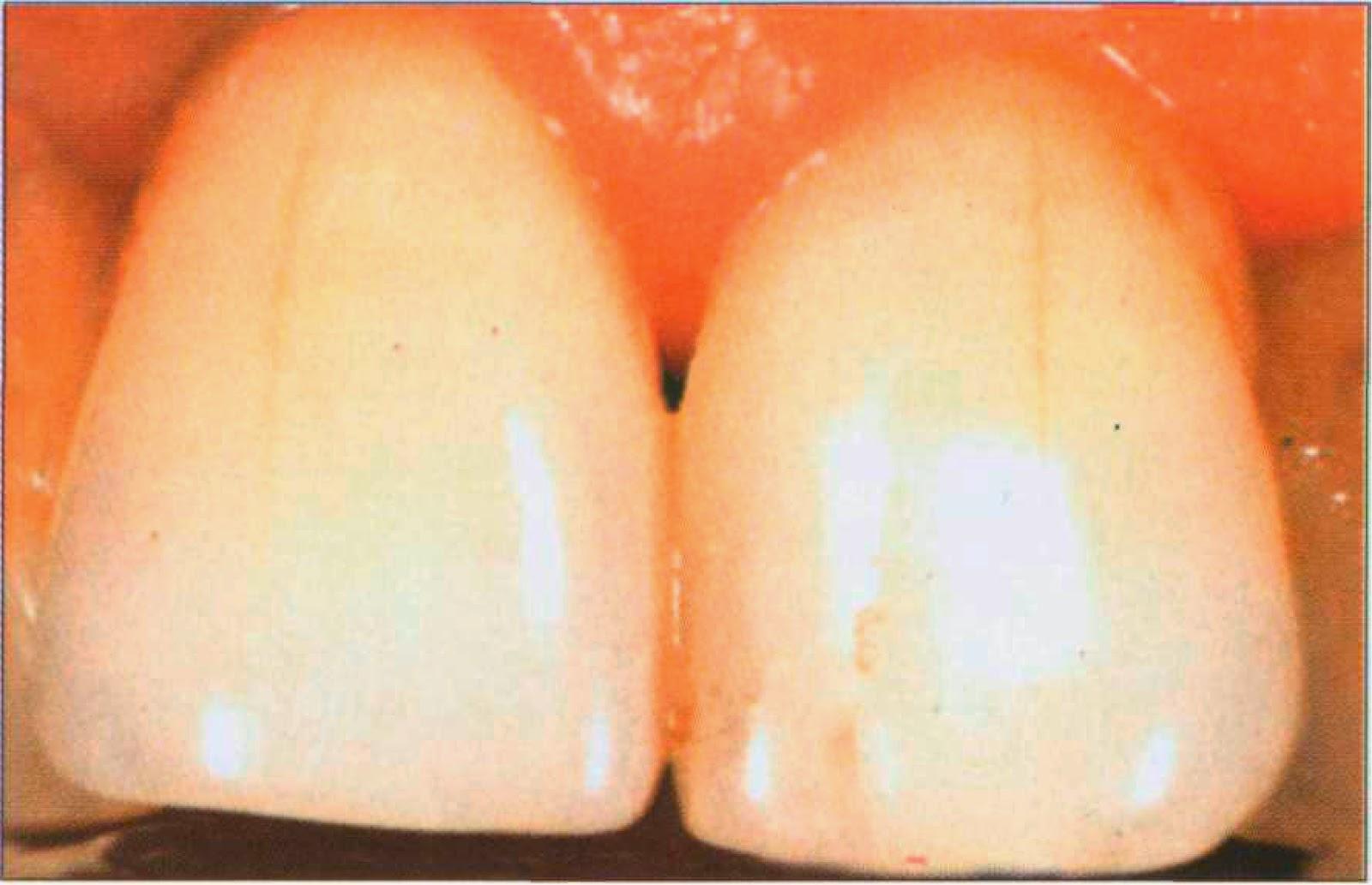 сколько стоит отбеливание зубов в вологде
