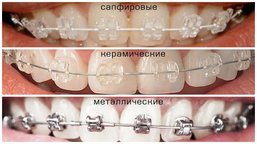 Металлические или керамические брекеты отзывы