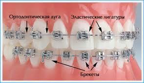 лигатуры